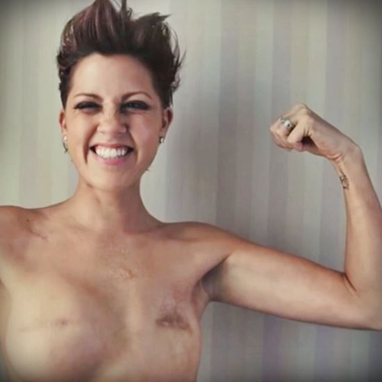 Empowered woman with mastectomy scars