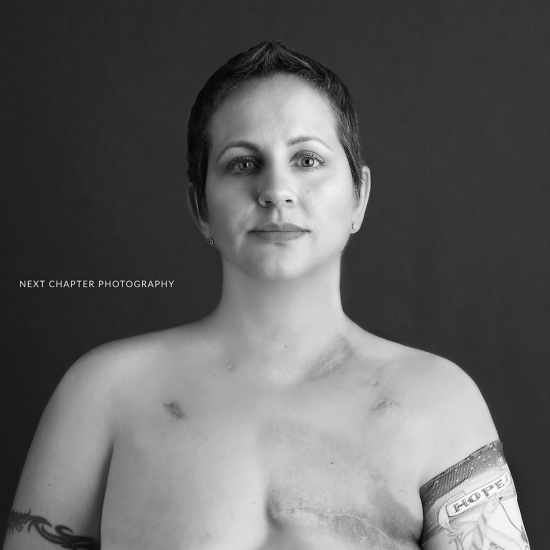 Black and white photo of woman with single mastectomy